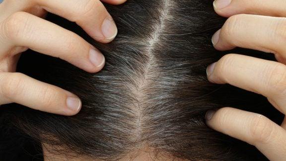 هشت ماده غذایی برای جلوگیری از ریزش مو