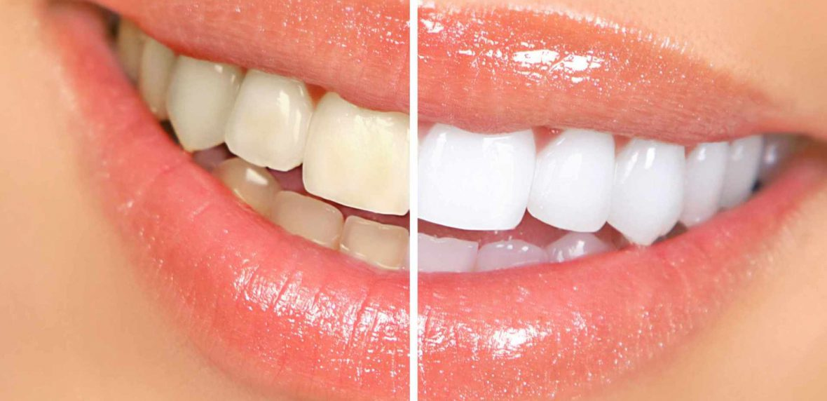راهکارهایی آسان برای سفید کردن دندانها