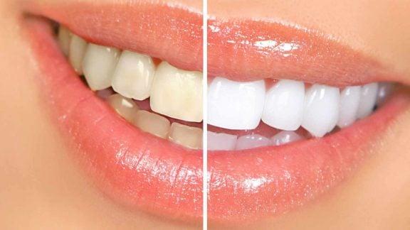 شش راه ساده برای سفید کردن دندانها با وسایل موجود در خانه