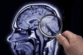 رفع خطرهای ژنتیکی آلزایمر