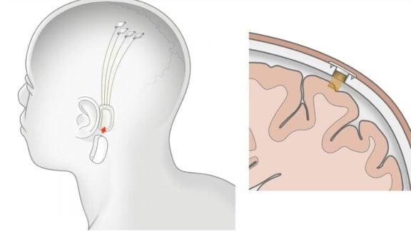 فردی که از رابط مغز-کامپیوتر استفاده میکند: با نئورالینک ایلان ماسک بازی کامپیوتری میکنم
